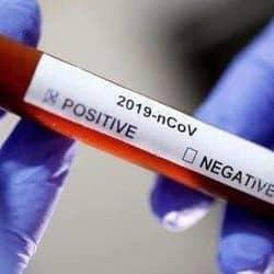 कंटेनमेंट जोन में लापरवाही से केसों में तेजी, कोरोना संक्रमित में से 30 प्रतिशत लोग इसी जोन से