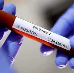 Corona virus (file cum symbolic image)