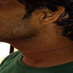 मडुवाडीह में चाइनीज मंझे की चपेट में आया युवक का गर्दन.