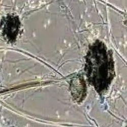 बिहार ब्लैक फंगस से संक्रमित मरीजों की संख्या लगातार बढ़ रही है. ( प्रतीकात्मक चित्र )