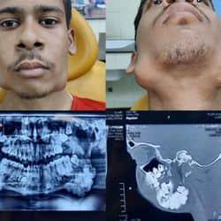 पटना IGIMS ने ऑपरेशन करके 17 साल के नीतीश के जबड़े से निकाला 82 दांत