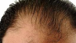 बालों का झड़ना हल्के में न लें, जानें लक्षण, कारण और इलाज