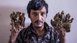 abul bajandar   28  dubbed  tree man  for massive bark-like warts on his hands and feet  sits at dha