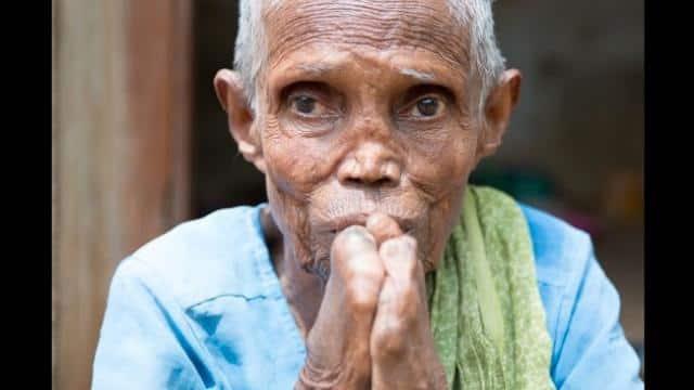 बिहार : कुष्ठ पीड़ितों को प्रतिमाह मिलेगी तीन हजार रुपये पेंशन
