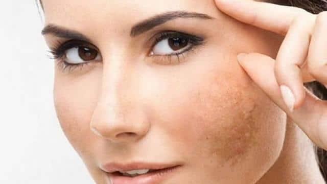 पिगमेंटेशन ने खराब कर दी है चेहरे की खूबसूरती, जानें किस विटामिन की हो सकती है कमी और कैसे करें बचाव