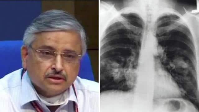 AIIMS डायरेक्टर डॉ गुलेरिया ने चेताया- कोरोना में बेवजह ना कराएं सीटी स्कैन, कैंसर का है खतरा