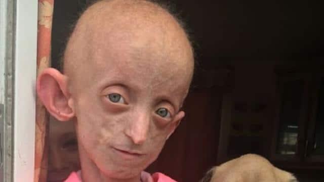 कम उम्र में ही 144 साल की दिखने लगी थी ये लड़की, दुर्लभ बीमारी से हुई मौत
