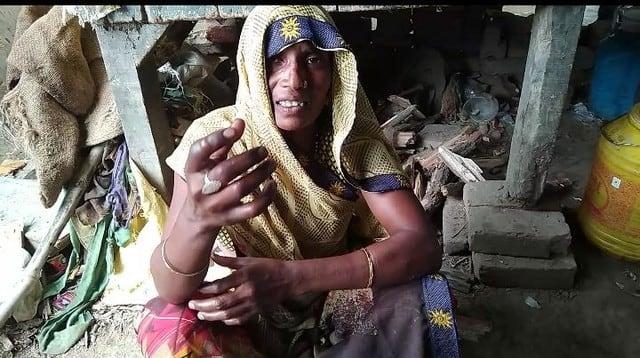 दलित महिला की उंगली जलाने वालों के खिलाफ मुकदमा
