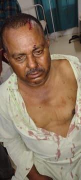 नवाबगढ़ी में ई-रिक्शा चालक पर जानलेवा हमला, गंभीर